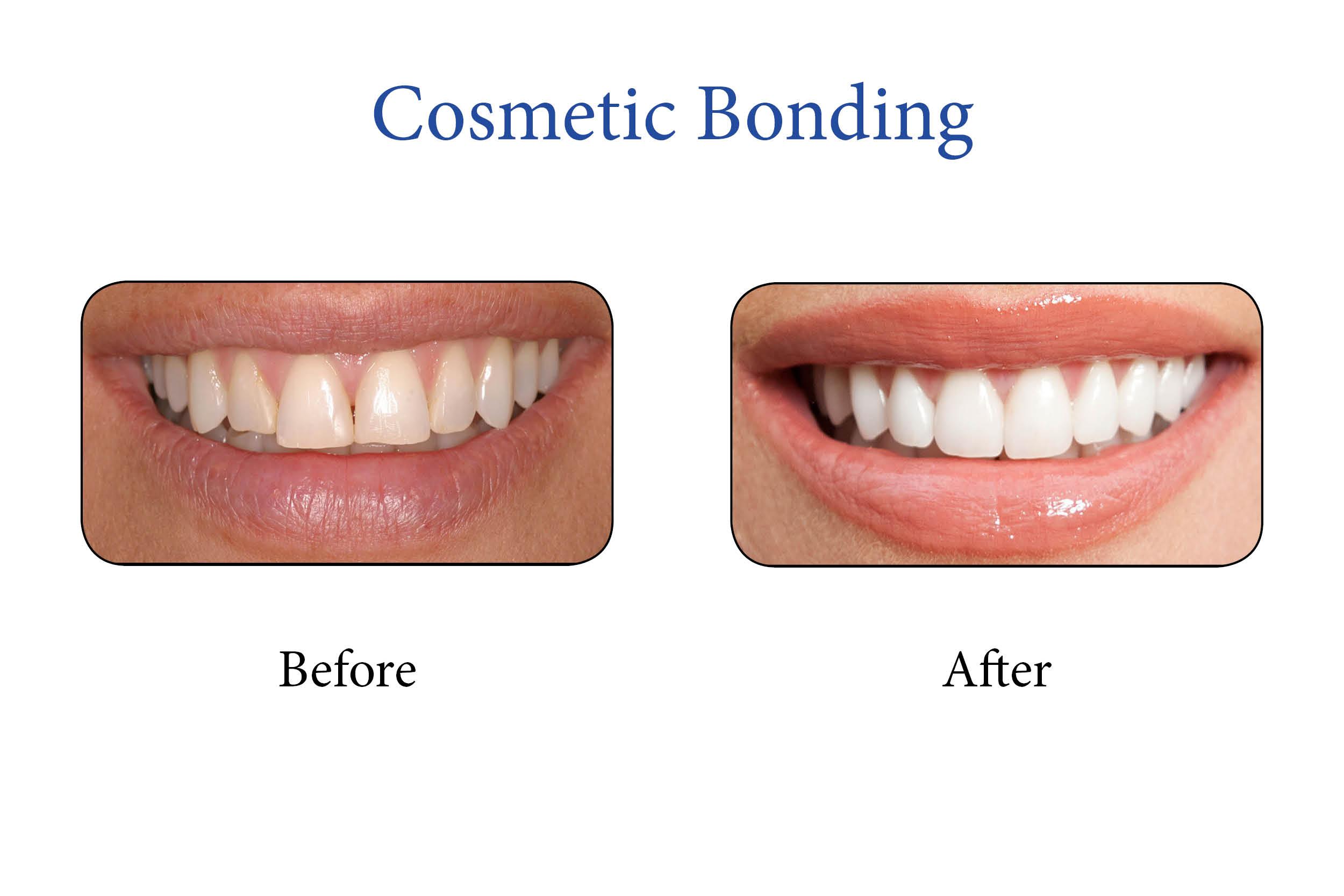 Markham Smile Gallery- Cosmetic Bonding