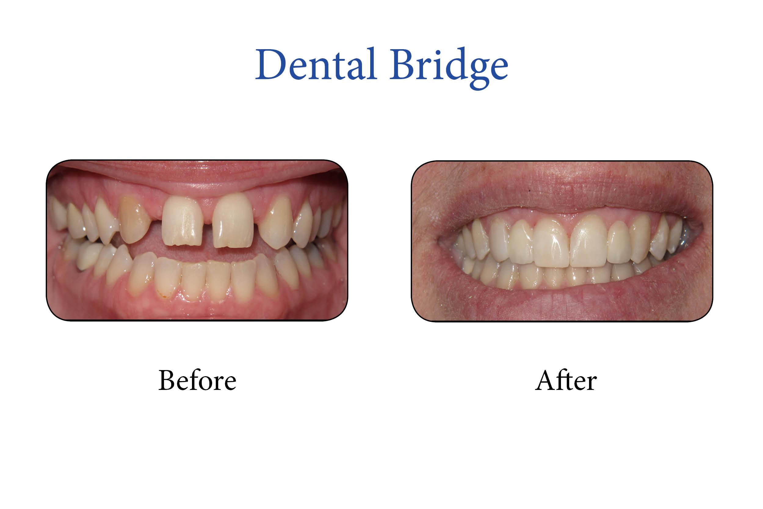 Markham Smile Gallery- Dental Bridge