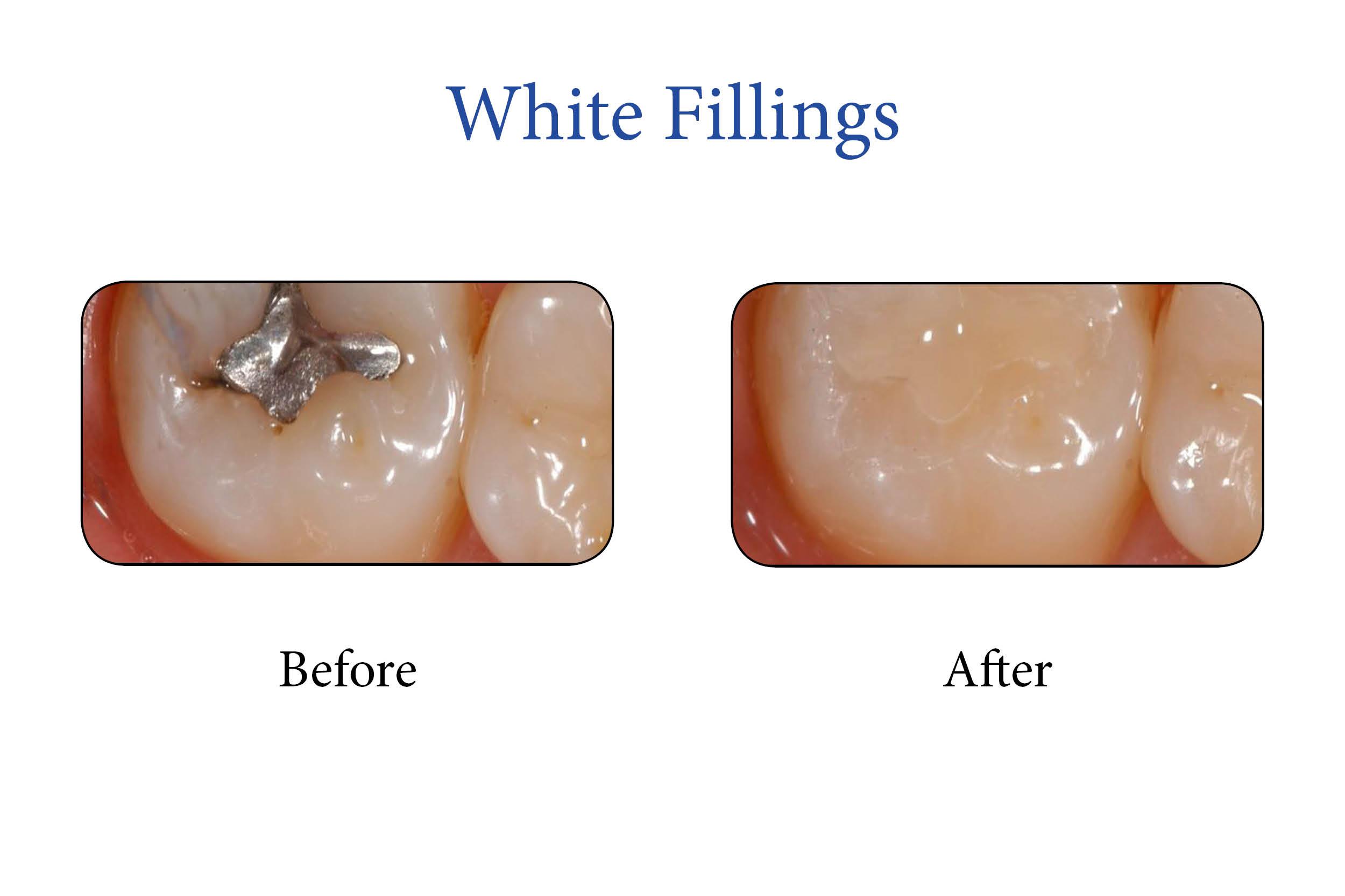 Markham Smile Gallery- White Fillingsv