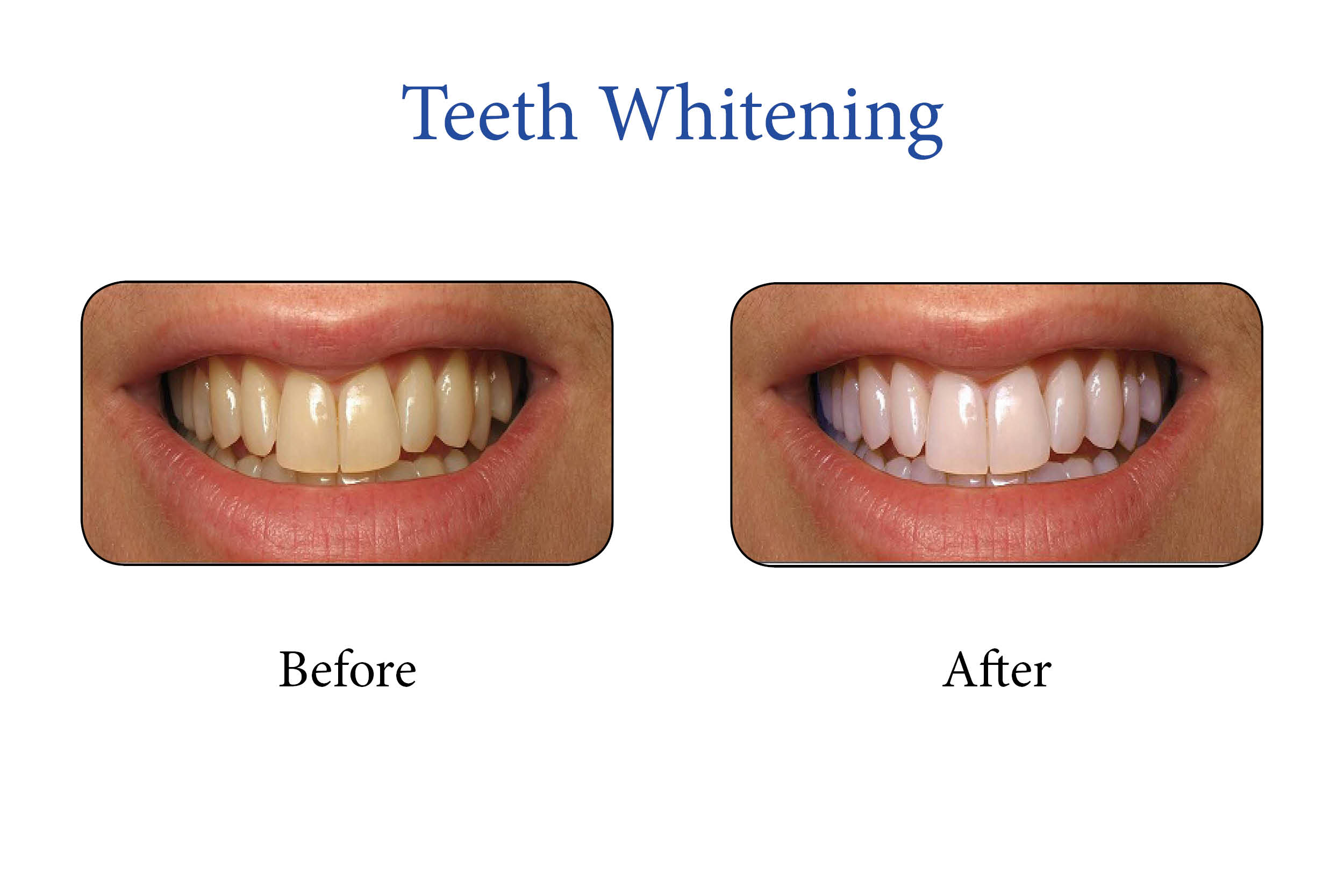 Markham Smile Gallery- Teeth Whitening