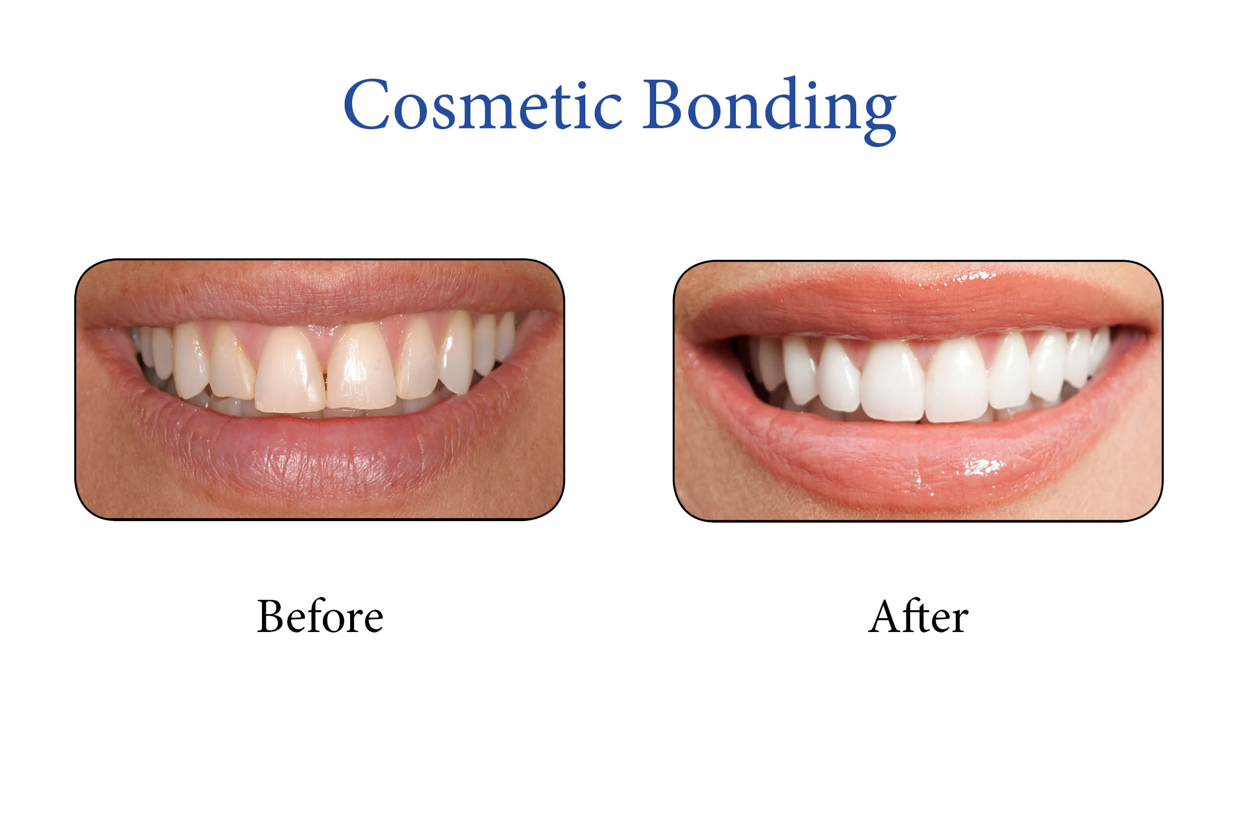 Markham Smile Gallery- Cosmetic Bonding