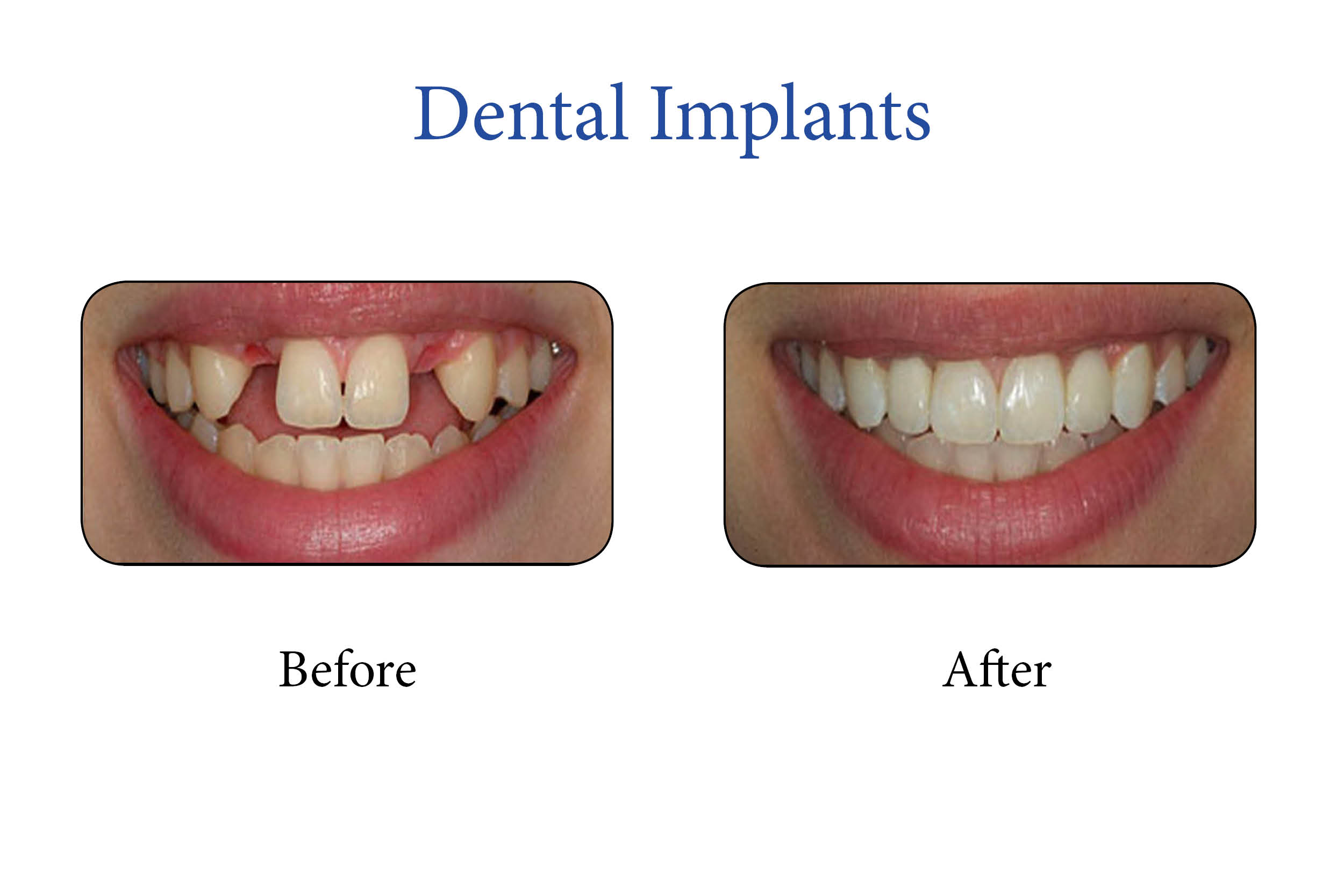 Markham Smile Gallery- Dental Implants