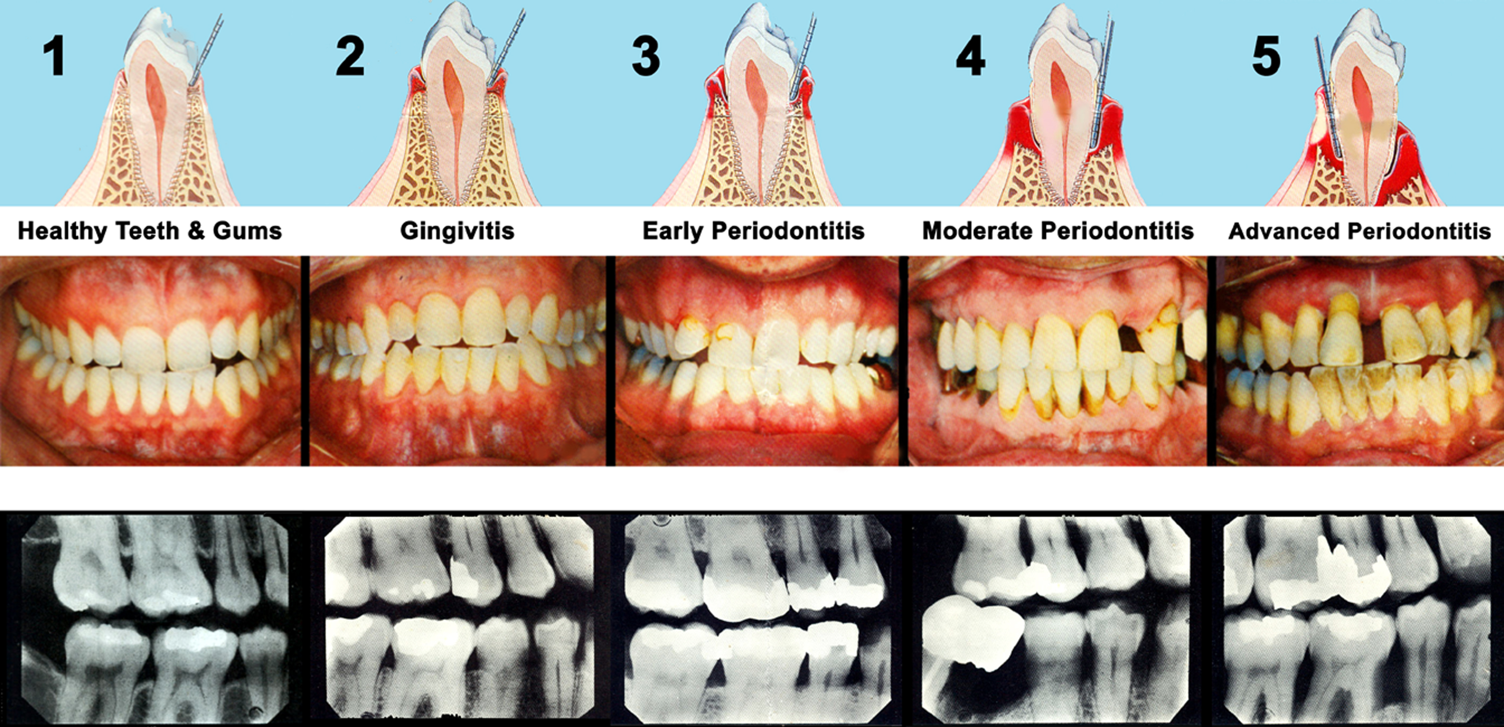 5 stages of gum disease