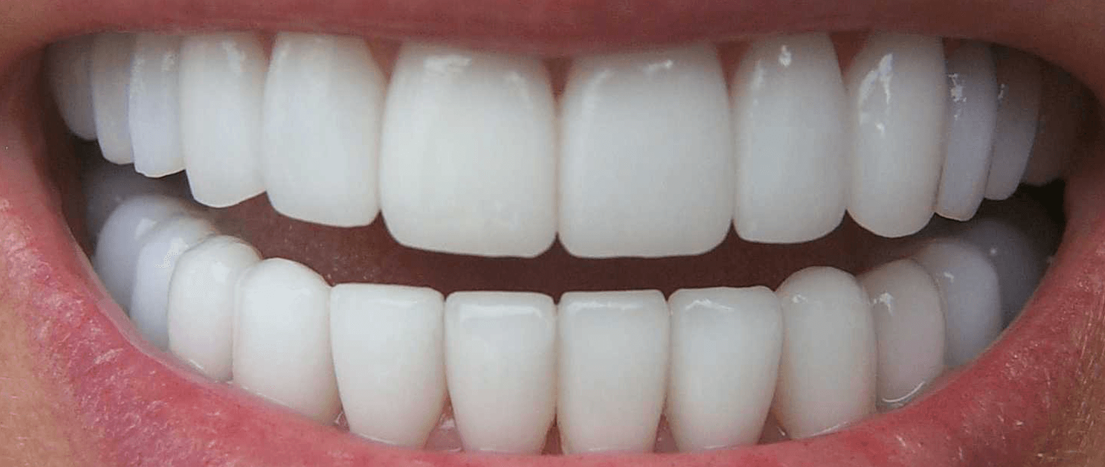 A smile after Cosmetic Bonding