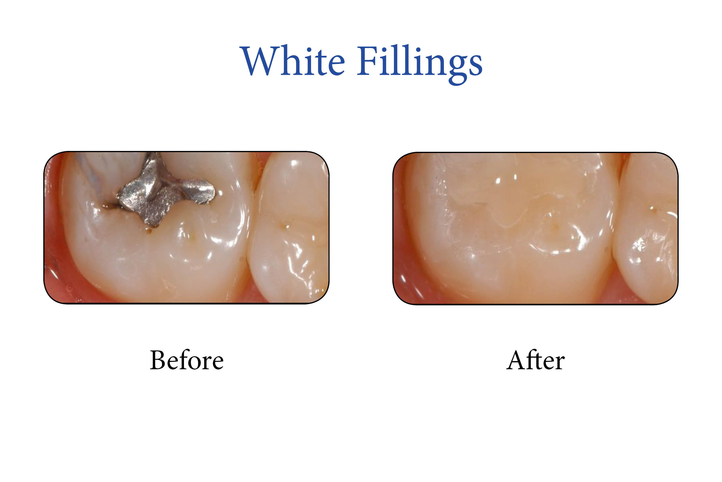 Markham Smile Gallery- White Fillingsv